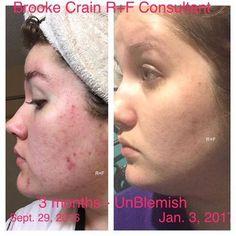 Brooke Crain